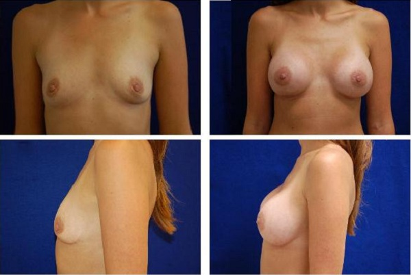 Breast_Augmentation_Case_135