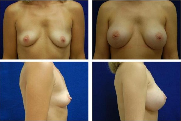 Breast_Augmentation_Case_136