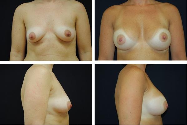 Breast_Augmentation_Case_13701