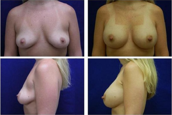 Breast_Augmentation_Case_138