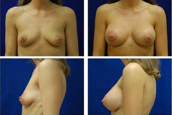 Breast_Augmentation_Case_139