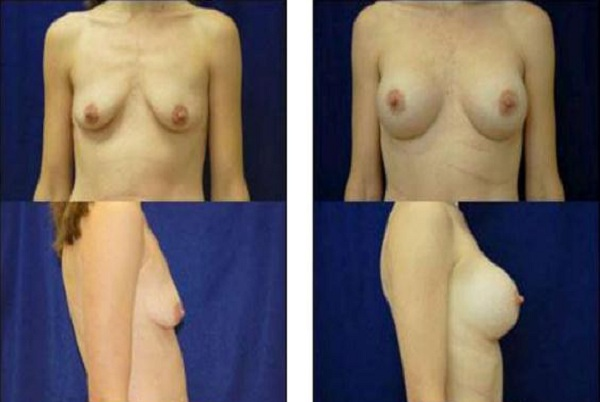 Breast_Augmentation_Case_14