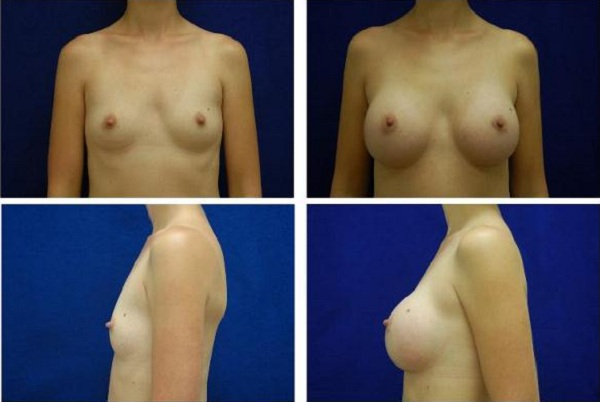Breast_Augmentation_Case_140