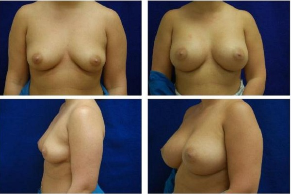 Breast_Augmentation_Case_141
