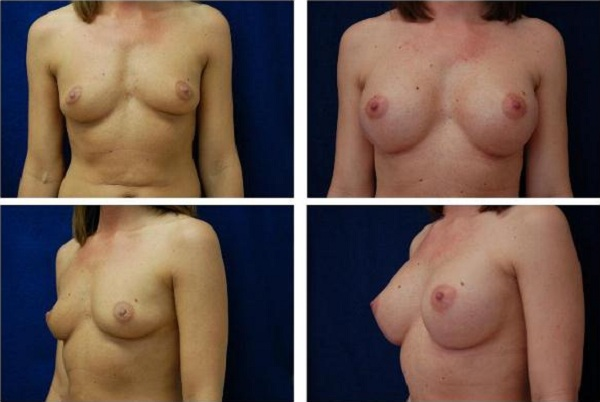 Breast_Augmentation_Case_142