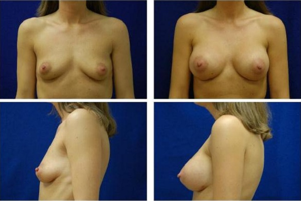 Breast_Augmentation_Case_143