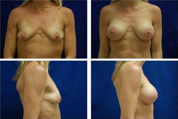 Breast_Augmentation_Case_145