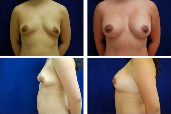 Breast_Augmentation_Case_147