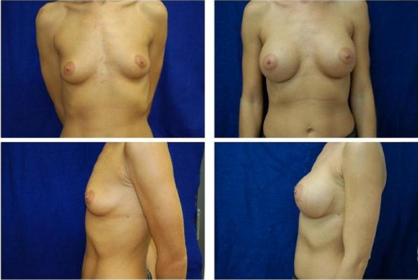 Breast_Augmentation_Case_148