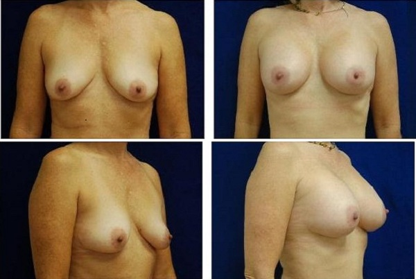 Breast_Augmentation_Case_149