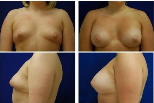 Breast_Augmentation_Case_151