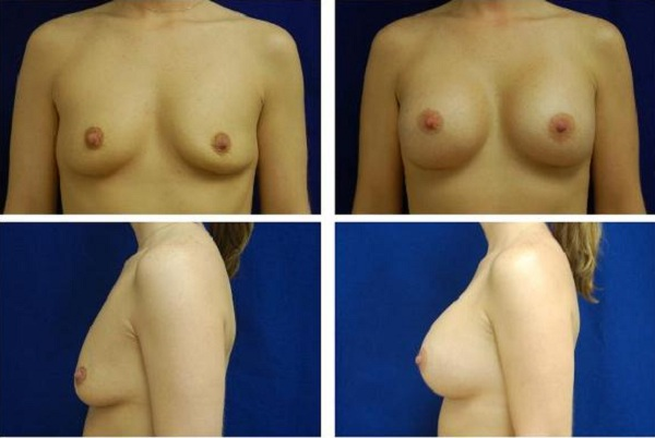 Breast_Augmentation_Case_152