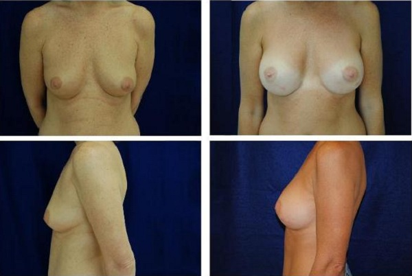 Breast_Augmentation_Case_154
