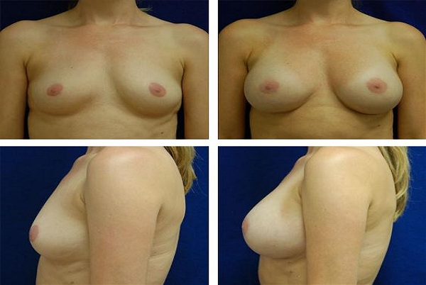 Breast_Augmentation_Case_1551