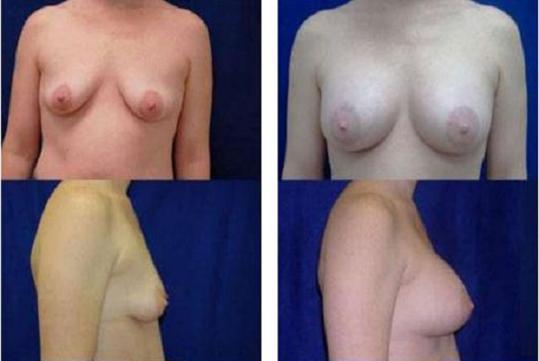 Breast_Augmentation_Case_17
