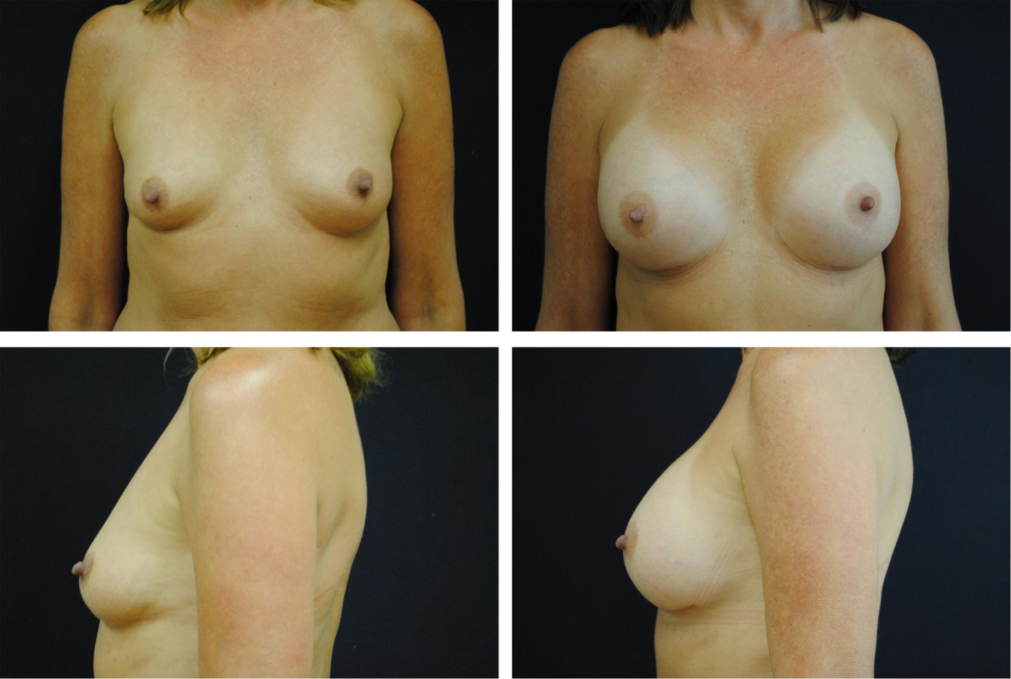 Breast_Augmentation_Case_17361