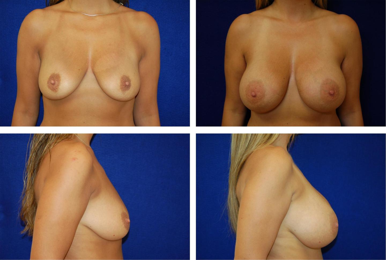 Breast_Augmentation_Case_1787