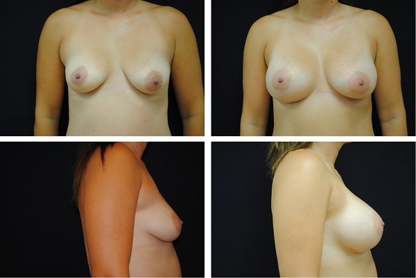 Breast_Augmentation_Case_1959