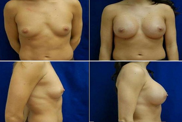 Breast_Augmentation_Case_206