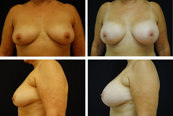Breast_Augmentation_Case_20621