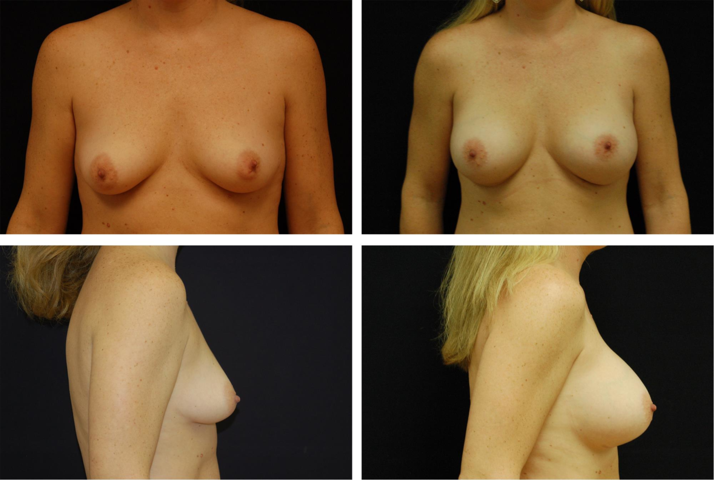 Breast_Augmentation_Case_23311