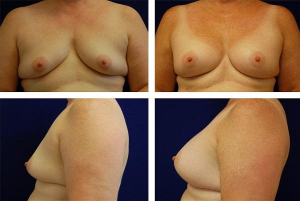 Breast_Augmentation_Case_2357