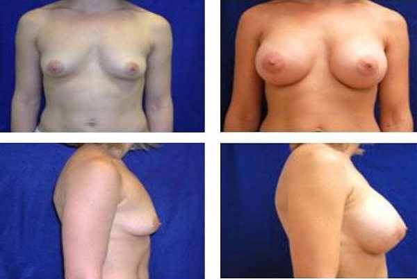 Breast_Augmentation_Case_24
