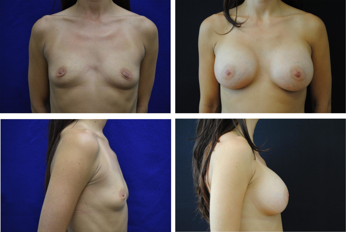 Breast_Augmentation_Case_25361