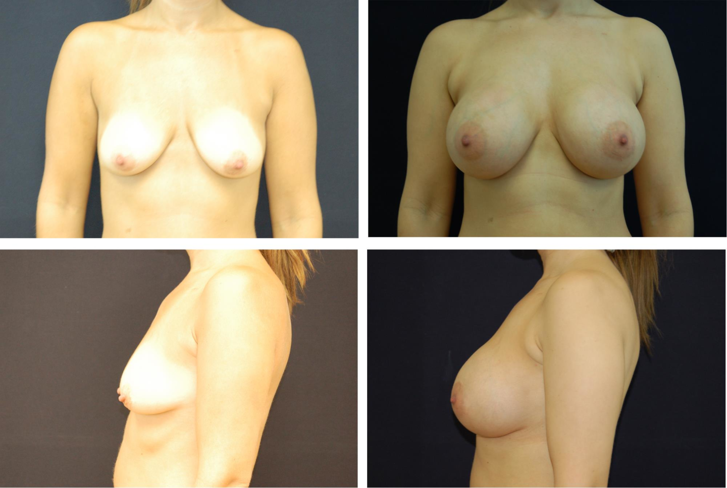 Breast_Augmentation_Case_25931