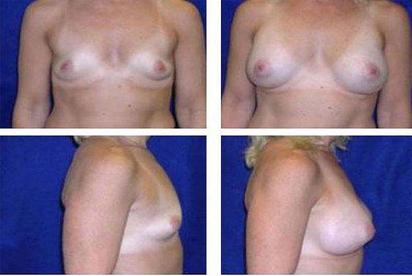 Breast_Augmentation_Case_27