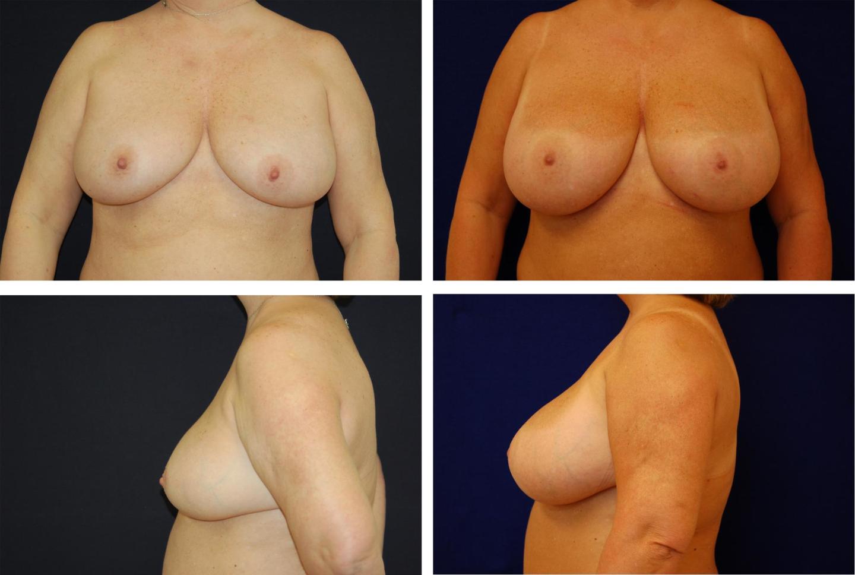 Breast_Augmentation_Case_27311