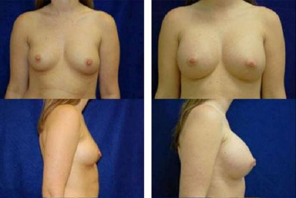 Breast_Augmentation_Case_3