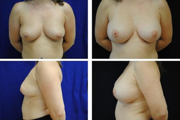 Breast_Augmentation_Case_301