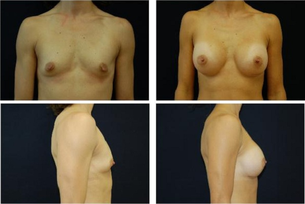 Breast_Augmentation_Case_302