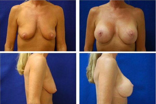 Breast_Augmentation_Case_303