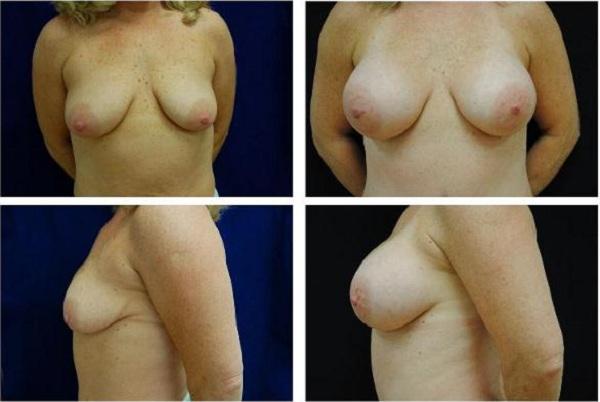 Breast_Augmentation_Case_304