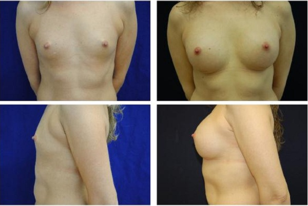 Breast_Augmentation_Case_310