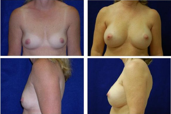 Breast_Augmentation_Case_314
