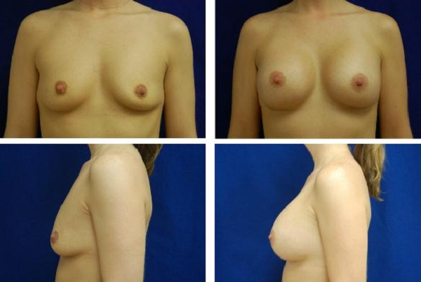 Breast_Augmentation_Case_316