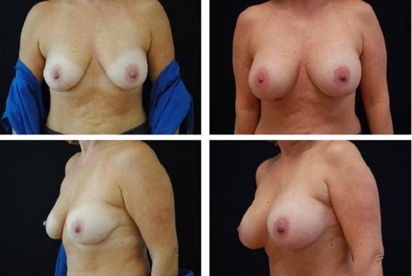 Breast_Augmentation_Case_320