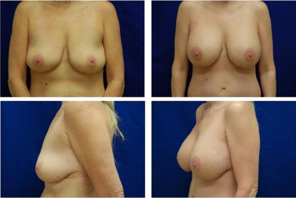 Breast_Augmentation_Case_321