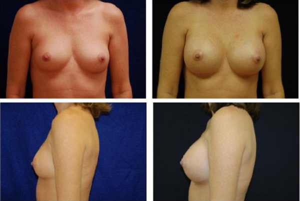 Breast_Augmentation_Case_325
