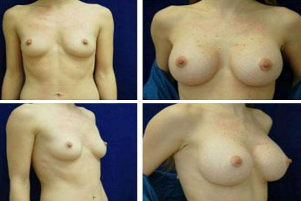Breast_Augmentation_Case_333