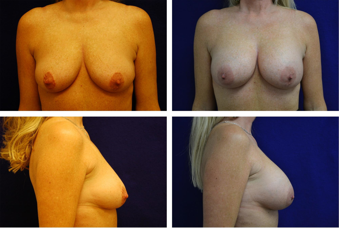 Breast_Augmentation_Case_34251