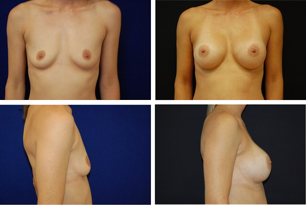 Breast_Augmentation_Case_3438