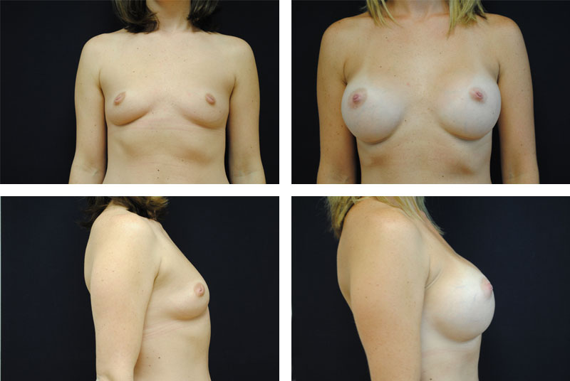 Breast_Augmentation_Case_3576