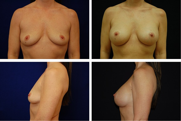 Breast_Augmentation_Case_39401