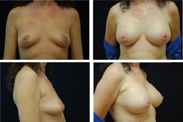 Breast_Augmentation_Case_400
