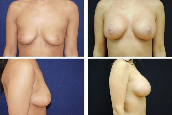 Breast_Augmentation_Case_401