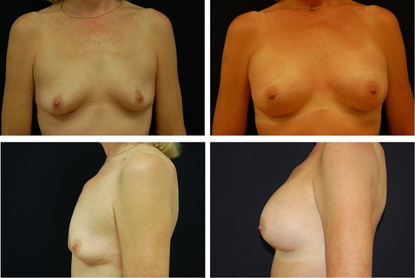 Breast_Augmentation_Case_4047